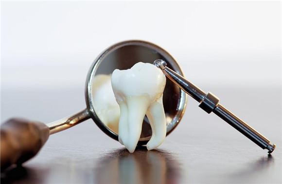 蛀牙怎么办?蛀牙补救的3个方法
