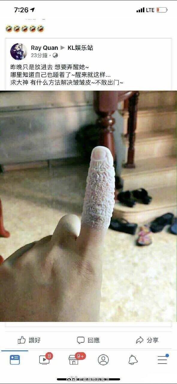 好慌啊 这手指还能保住吗 第1张